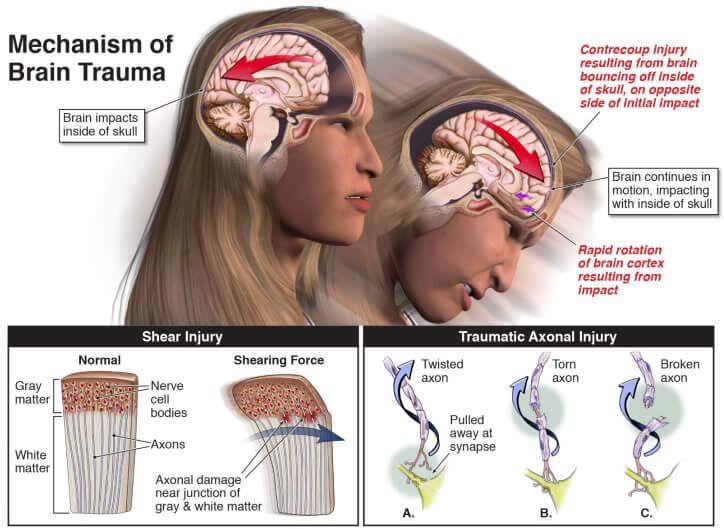 Diffuse Axonal Injury (DAI) - Charlie Waters Law