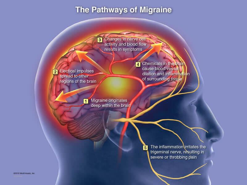 Pathways of Migraines